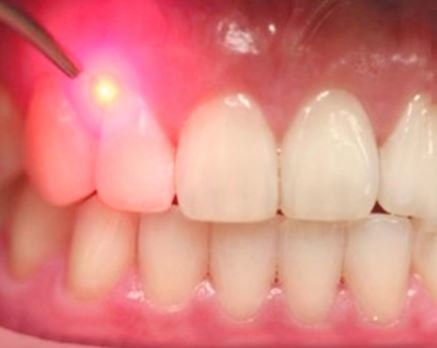 Laser Periodontal Therapy Long Island